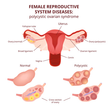 PCOS  Homeopathy help