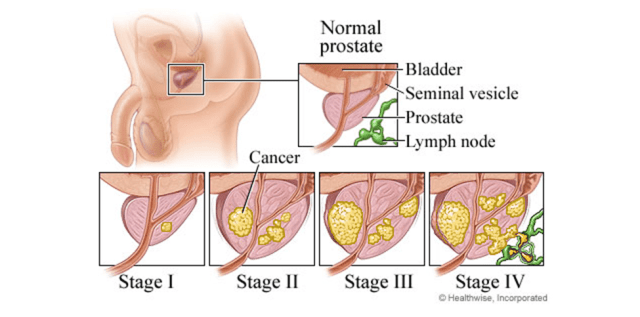 PROSTATE CANCER STAGING