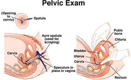 Pelvic-Exam (1)