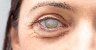 Cataratas da saúde dos olhos |  Holly's Bird Nest 3
