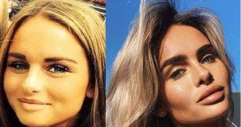 Sarah voor en na…. Nieuwe liefde André Hazes laat ieder jaar fillers in jukbeenderen en lippen spuiten
