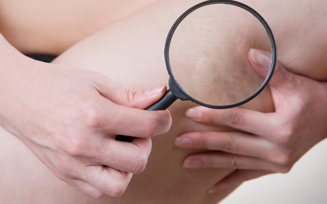 SIX WAYS TO PREVENT PRESSURE ULCERS (BED SORES)