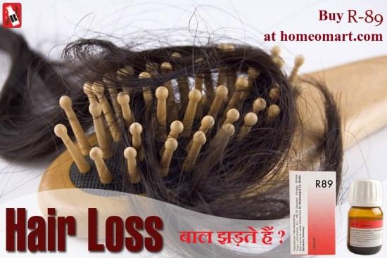 Reckeweg R89 drops for hair loss treatment, Alopecia (bald spots), hair thinning, Grey Hair