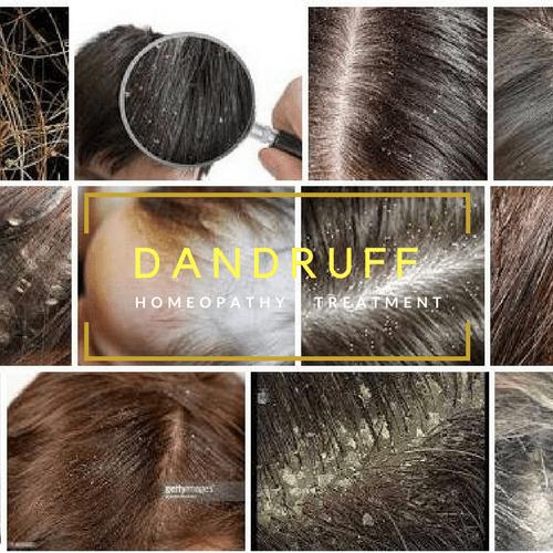 Dandruff treatment in Homeopathy