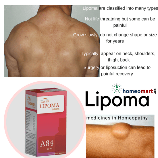 top Lipoma treatment and removal medicines, A84 drops