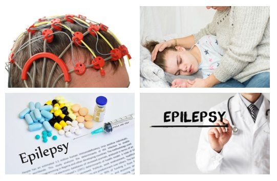 homeopathy-medicines-for-fits-epilepsy