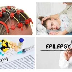 Fits, Epilepsy