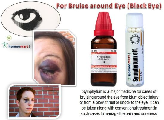 Homeopathy for Bruise Around Eye Black Eye eye injury