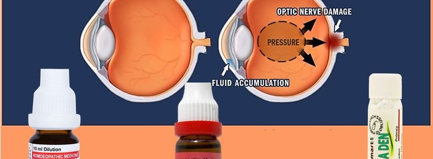 Eye ball showing glaucoma development with medicines