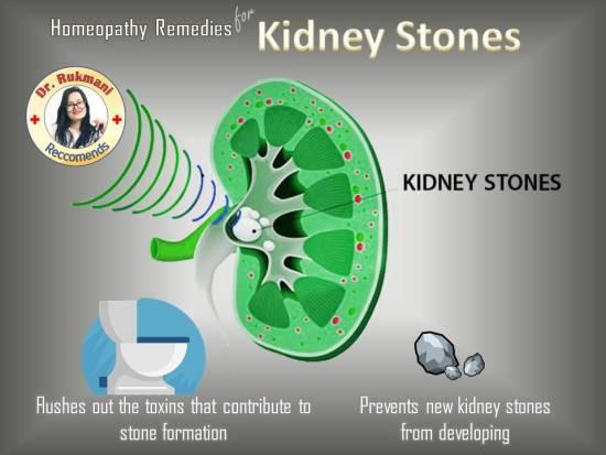 medicine to break up kidney stones, kidney stone pain relief