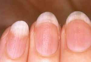 Diagnosis through nails at Welling Homeopathy