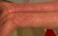 Electro Homeopathic Medicines for Eczema