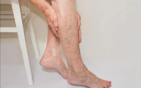 Varicose Veins Symptoms, Causes and Treatment