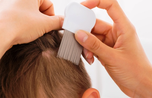Getting Rid of Lice