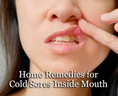 Home Remedies for Cold Sores Inside Mouth
