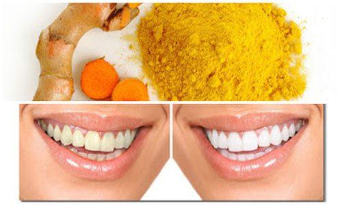 Turmeric-based paste for gums