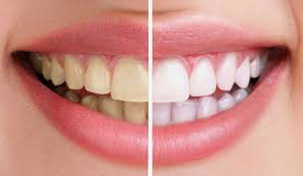Wax Tooth Cap With Coconut Oil uses to get rid of Canker Sores In Mouth fast