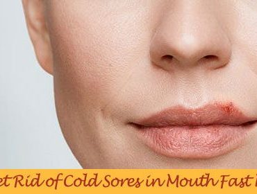 home remedies for cold sores in mouth