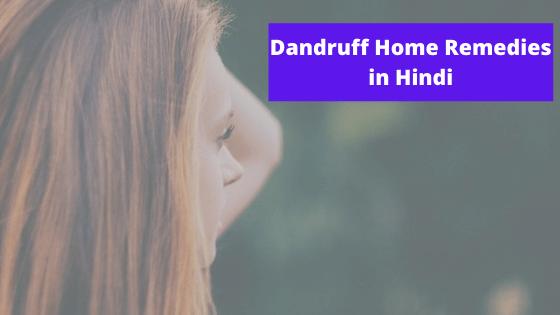 Dandruff Home Remedies in Hindi