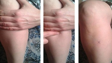 the-point-of-a-hundred-diseases-home-remedies