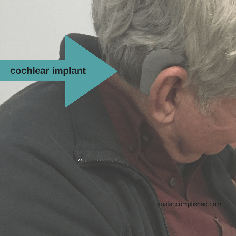 This picture shows the cochlear implant recipient shows processor and magnet behind his ear.