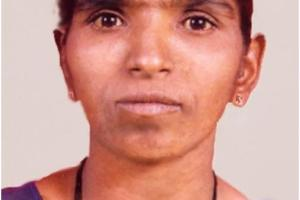 Case of NEUROFIBROMA