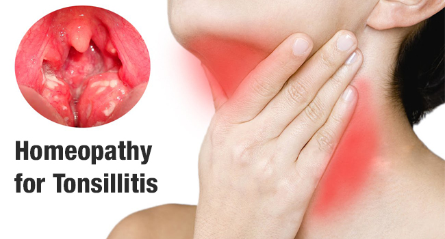Homeopathy for tonsillitis