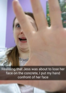 Realising that Jess was about to lose her face o the concrete, I put my hand infront of her face
