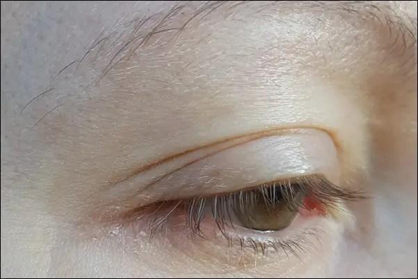 Vorher ohne Medipharma Cosmetics Wimpernbooster