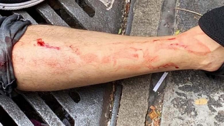 injured leg lennon wall hang hau