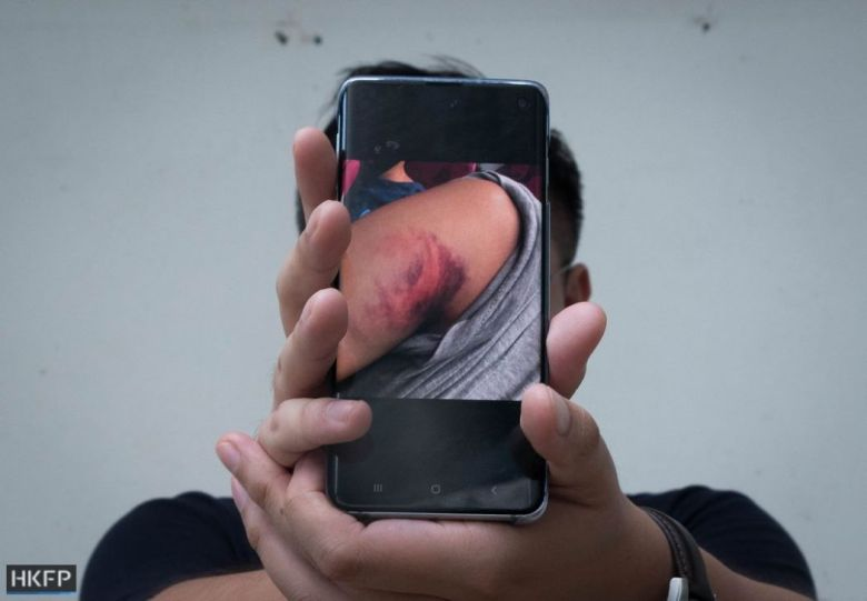 hidden clinic bruise