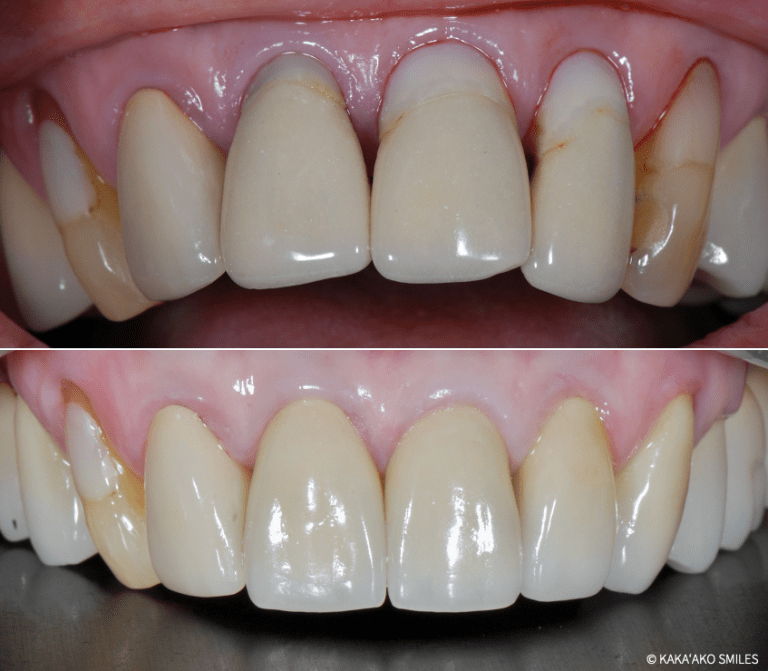 Kaka'ako Smiles before and after case showing fractured front teeth restored with dental crowns