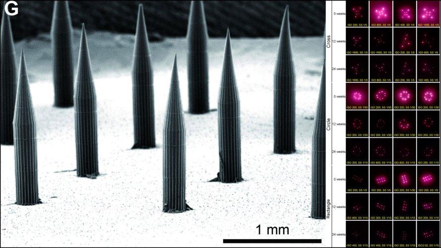 1920_x_1080_quantum_dot_micro_needle