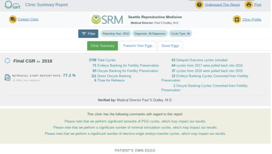 SART SRM
