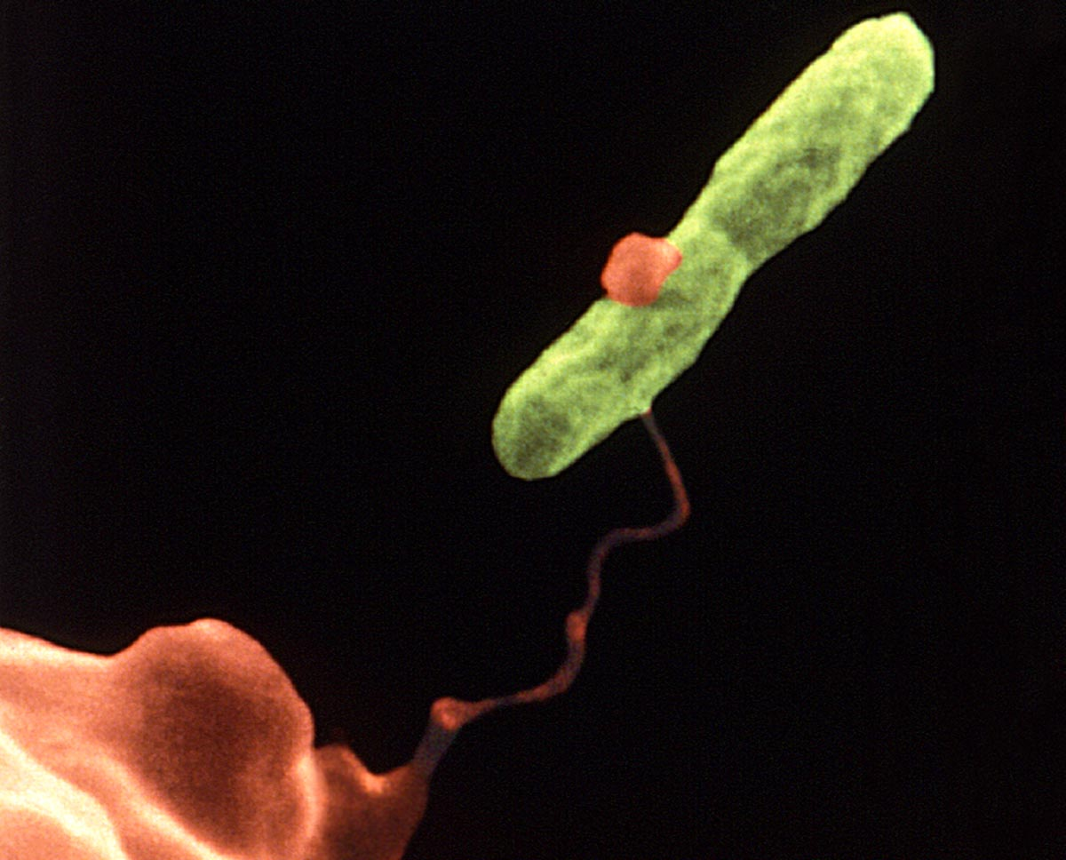 Legionella cells can be detected with a home-printer-size testing machine. Image credit - CDC/ Dr. Barry S. Fields