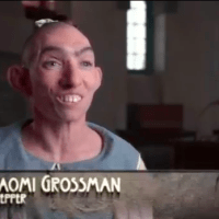 """American Horror Story Asylum Releases Official Featurette on Pepper The Pinhead - Watch """"Meet Pepper"""" Now!"""