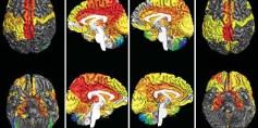 دراسة: دماغ المرأة أكثر نشاطاً من دماغ الرجل
