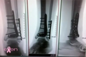 The two metal bars in Kaley Cuoco's leg.