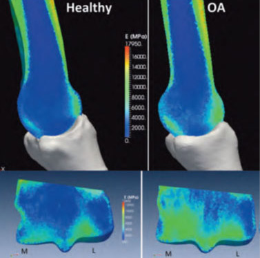 Healthy and Osteoarthritic Bone Density (Green = higher density bone). Mapped material stiffness on third metacarpal from micro-computed tomography images. Bottom images show the internal stiffness distribution through the medial/lateral plane of the distal end of MC3.