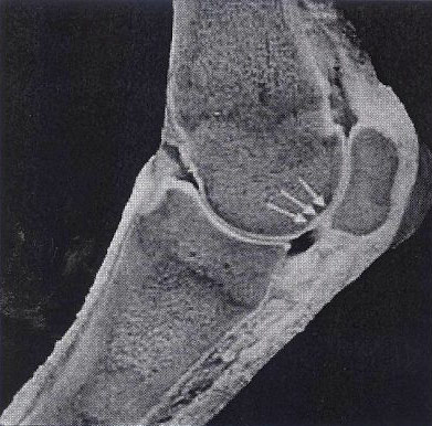 An unaffected subchondral bone.