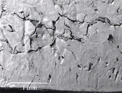 Subchondral bonewith microfracture lines and early collapse in a sample from the group with severe sclerosis and focal rarefaction. Note multiple cracks and fragmentation of bone with formation of gaps within fracture lines.