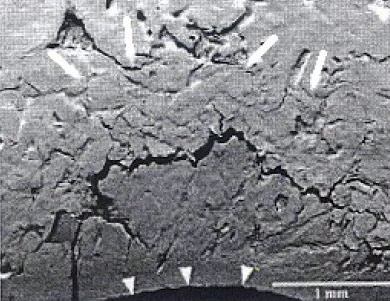 Subchondral bone microfracture at the site of collapse and indentation of cartilage (arrowheads) in a sample from the group with advanced lesions.A fracture line through the calcified cartilage, (lower left) is associated with further infolding. The layer of bone above the microfracture has multiple fragmentation lines and a compacted appearance (outlined by arrows).