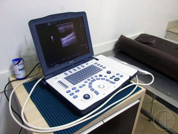 HVC - Ultrassonografia