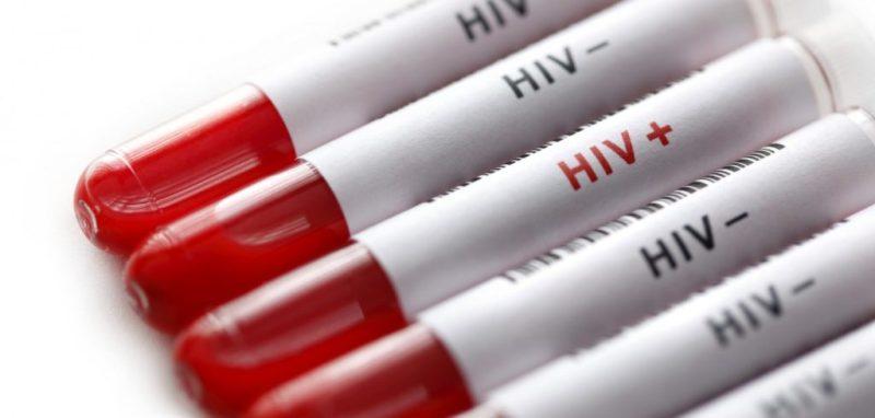 El VIH podría curarse mediante el trasplante de células madre - vih202-jpg