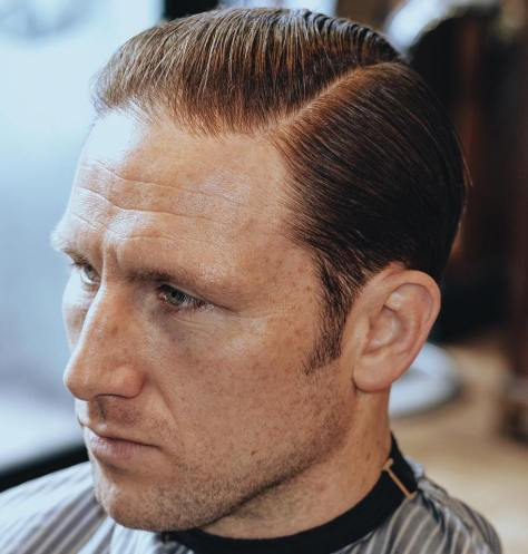 Comb Over Thinning Hair