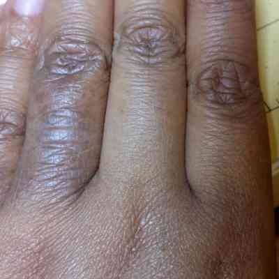 Atopic Dermatitis in Darker Skin Tones