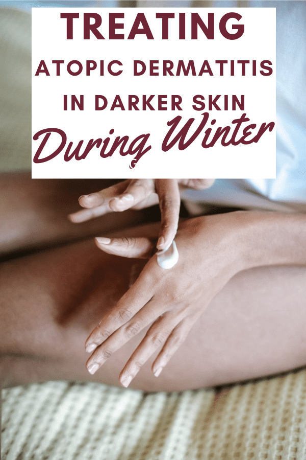 Treating Atopic Dermatitis in Darker Skin