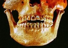 Ancient tooth decoration_1