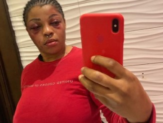 Nigerian Lady Reveals What A Man Beat Her For Allegedly Trying To Leave Him