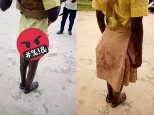 School girl left with blood stained uniform after rape by 40-year old man